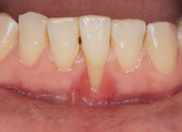 Periodontal Care | Gum Disease